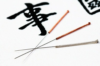 Acupuncture therapy Galway