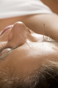 Woman getting an acupuncture treatment
